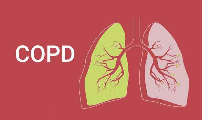 Is A Dehumidifier Good for COPD