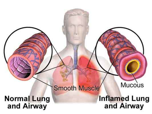 Asthma in humans