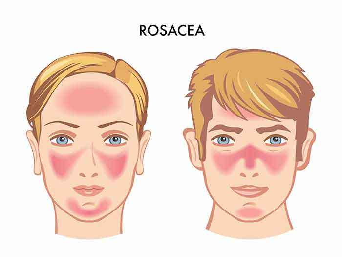 Does Rosacea Cause Dry Skin?