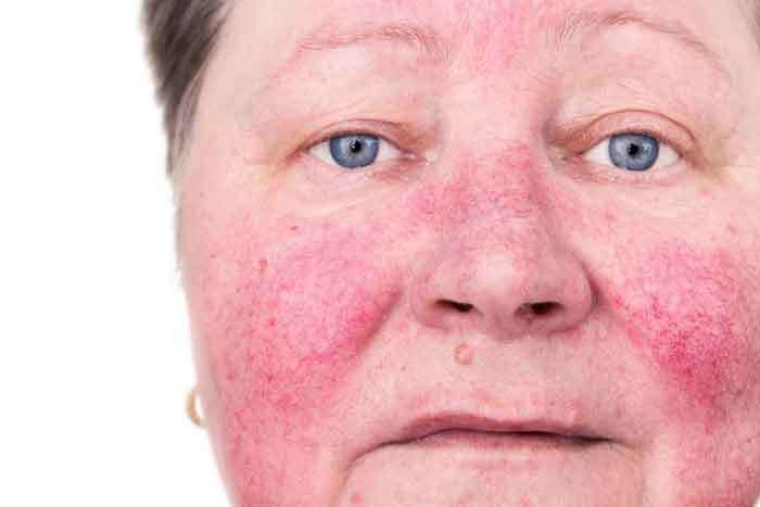 Best Humidifier for Rosacea