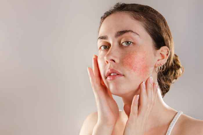 How To Calm Rosacea Flare Up?